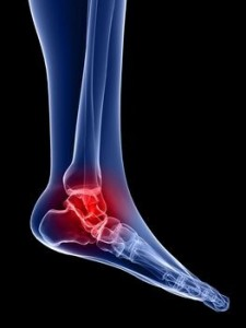 How to relieve ankle pain