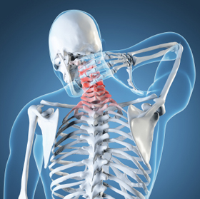 How to relieve neck pain, Richmond, VA